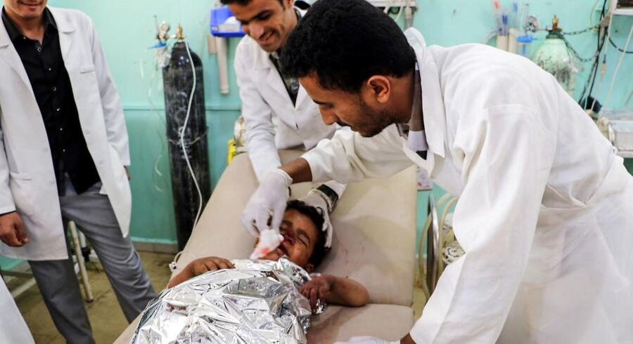 Et såret barn behandles efter luftangrebet i Saraa, Yemen 8. august 2018.