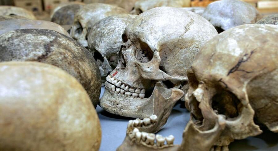 Forskere har fundet huller og dybe snitspor på tre kranier fra en tyrkisk stenalderudgravning.