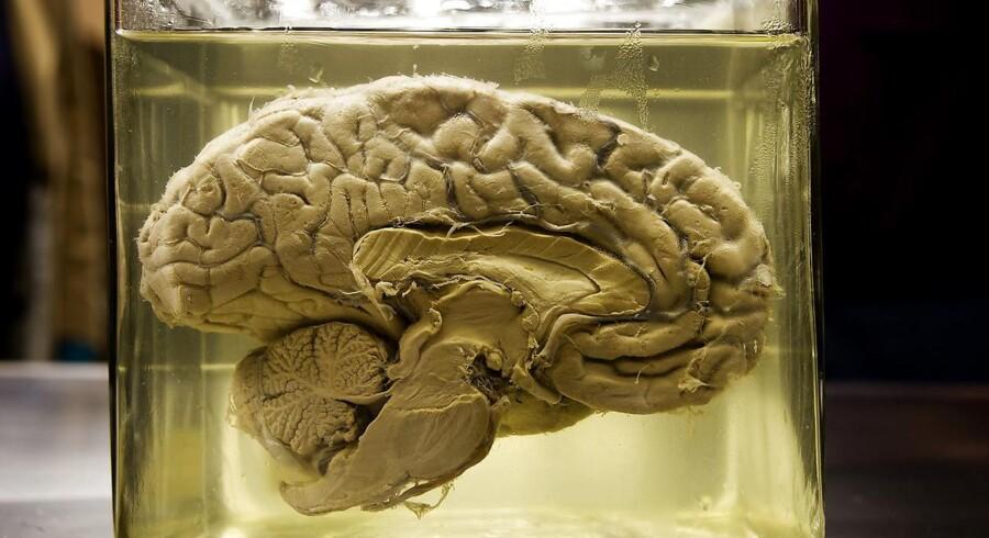 Arkivbillede af en hjerne