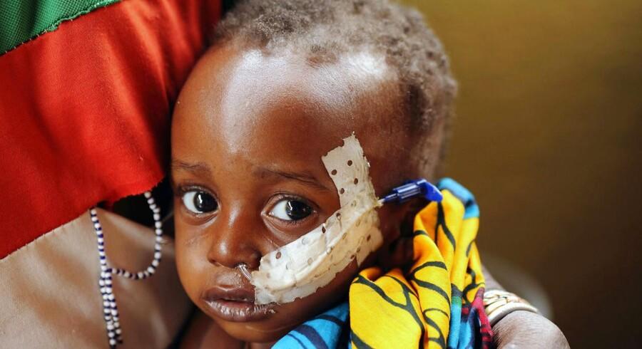 Ud over sult må Sahel-regionens 15 millioner indbyggere, i det vestlige Afrika, nu også kæmpe med en omfattende koleraepidemi. Her ses den to-årige Ouobra Kompalemba, som lider af underernæring og bronkitis. Diapaga, Burkina Faso.