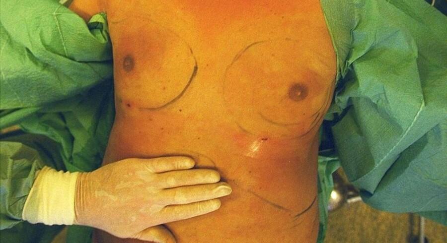 Kosmetisk operation - fedtsugning - på en mand.