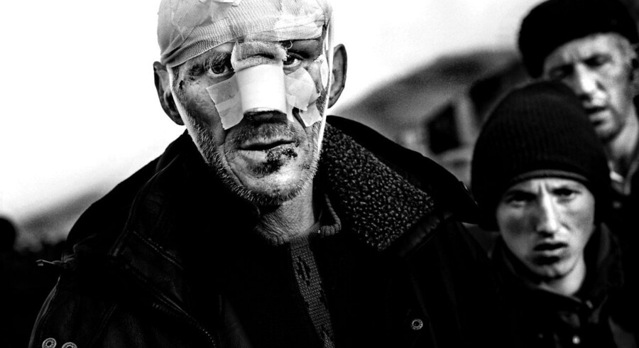 En såret kosovoalbanke mand går rundt i Kukes med hukommelsestab efter flugten fra Serbien, 4. april 1999. Fotograf Claus Bjørn Larsen modtog førstepræmien i kategorien af avisreportage-billeder for billedet ved foto-festivalen Visa pour l image. Han har nu også vundet konkurrencern World Press Photo Of The Year.