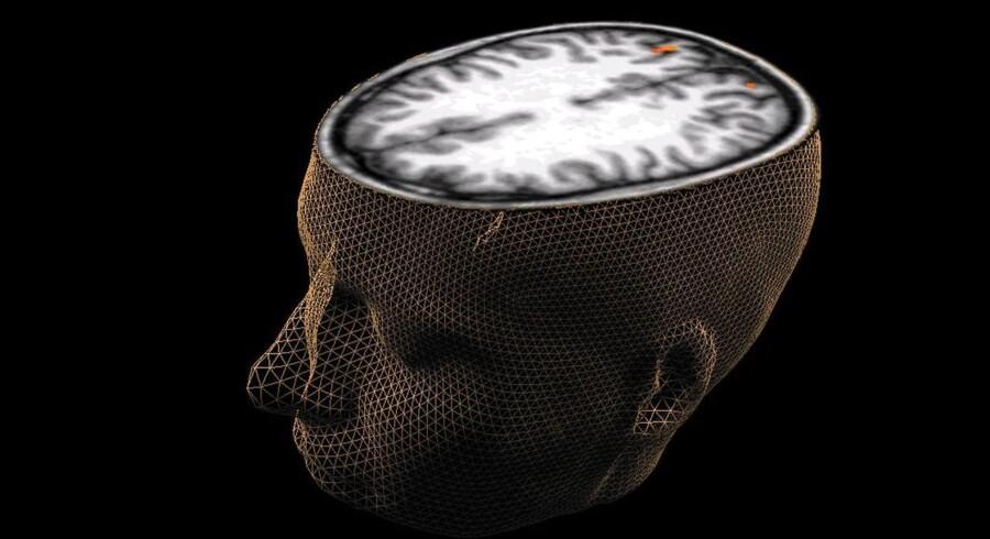 En 3D genereret computermodel viser et tværsnit af hjernen. Arkivfoto.