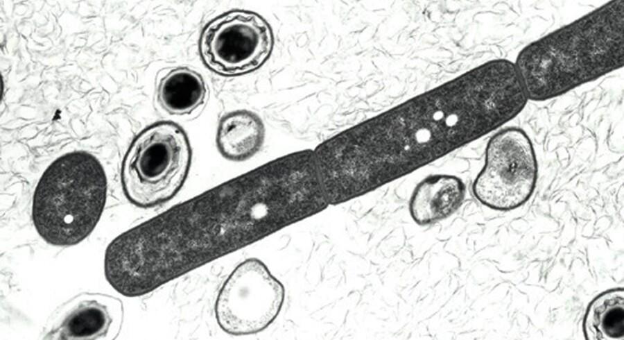 Arkivfoto. Miltbrand virus.