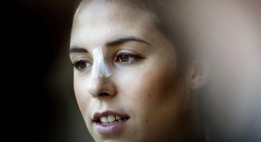 Louise Burgaard - med plaster på sin skadede næse - ved fredagens pressemøde i den danske EM-lejr.