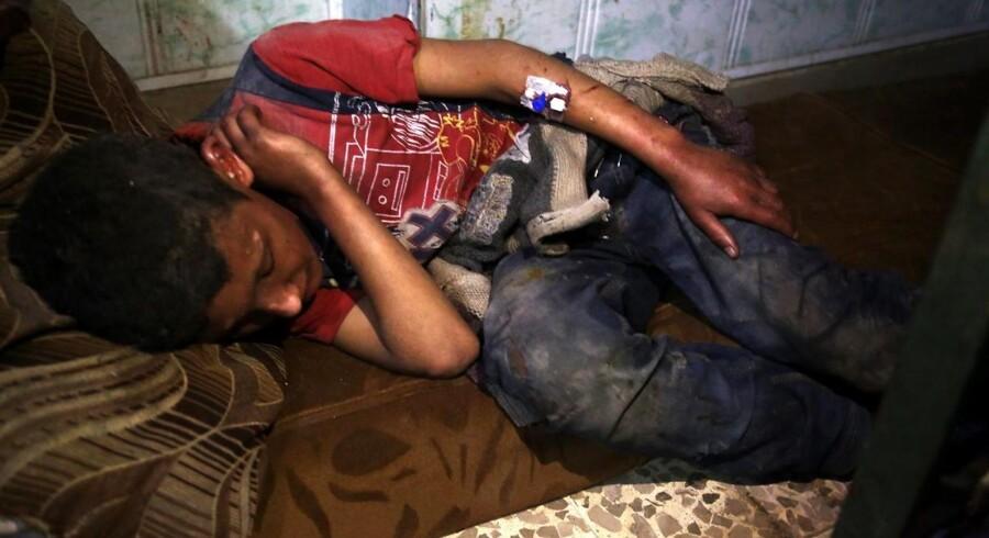 En såret dreng ligger til behandling efter angrebet i Douma, der har kostet mange mennesker livet.