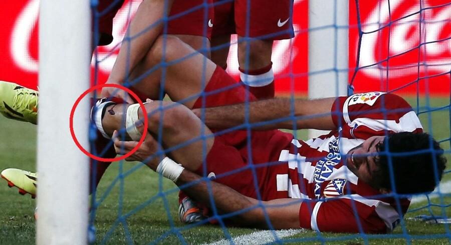 Holdkammerat Adrian lagde et indlæg på tværs, og da Diego Costa kastede sig og gav sig fuldt ud for at sende bolden i mål, ramlede han sammen med stolpen, og det kostede et åbent kødsår.