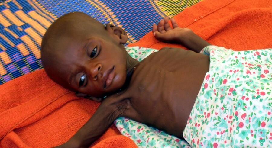 A-vitamintilskud til børn øger dødeligheden blandt piger
