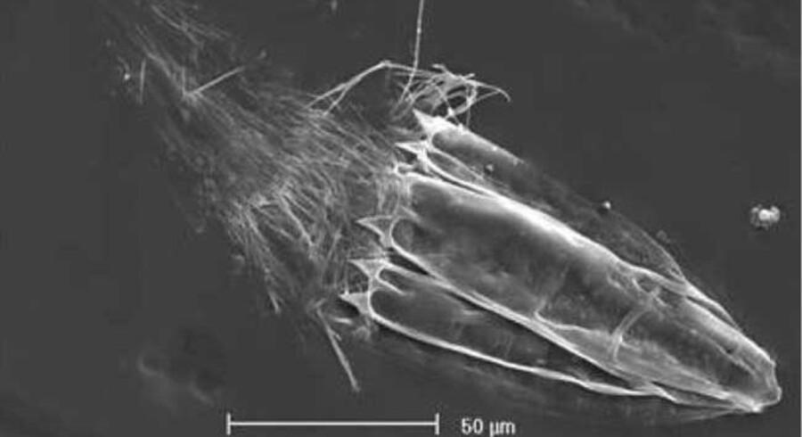 Det nyfundne dyr, som kan leve uden ilt, takket være særlige organeller som hidtil kun er fundet hos encellede organismer. Målelinien er 50 mikroner lang. Hele dyret er mindre end en milimeter..