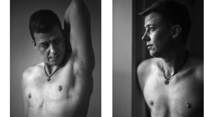 Portræt af Mark Nielsen, der udtaler sig om den to år lange proces, man skal igennem for at starte hormonbehandling i Danmark. Han blev opereret i Tyskland for egen regning, da han ikke kunne vente på en afgørelse fra Sexologisk Klinik.