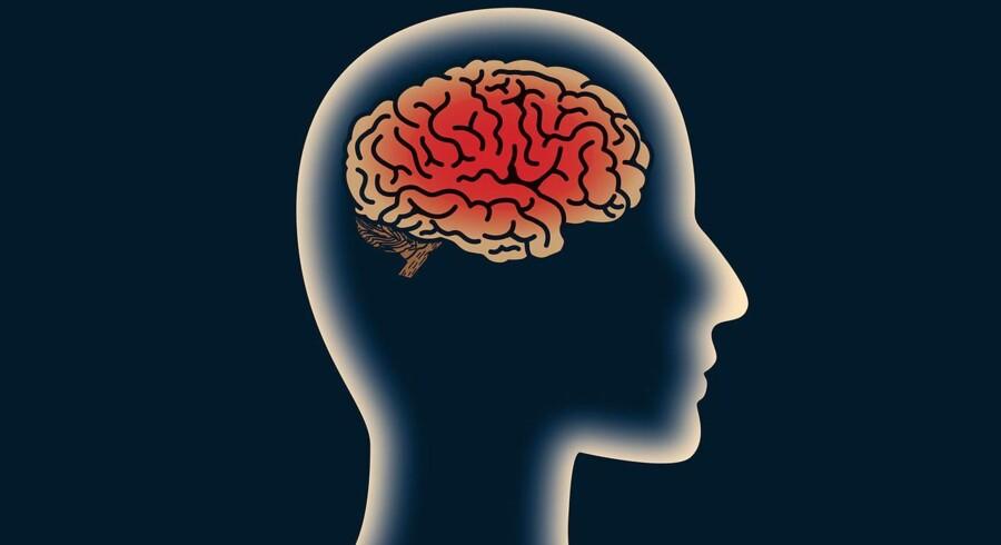 Stockfoto: Region Midtjylland og Aarhus Universitet vil nedlægge hjernesamling i Risskov. Den er for dyr, mener de.