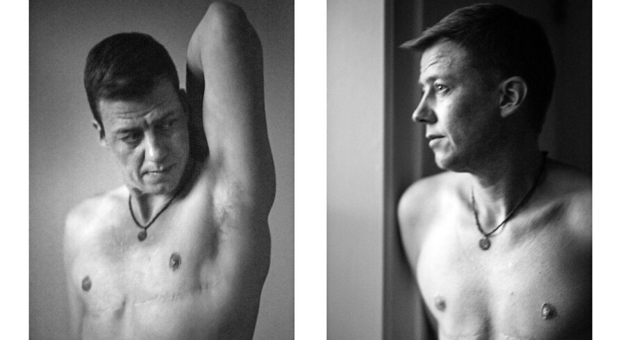 Mark Nielsen er en transkønned mand. Han er altså født med et kvindeligt kønsorgan men har altid følt sig som en mand. Han blev opereret i Tyskland for egen regning, da han ikke kunne vente på en afgørelse fra Sexologisk Klinik.Amnesty kritiserede tidligere på året, at transkønnede står på listen over psykiske sygdomme i Danmark.