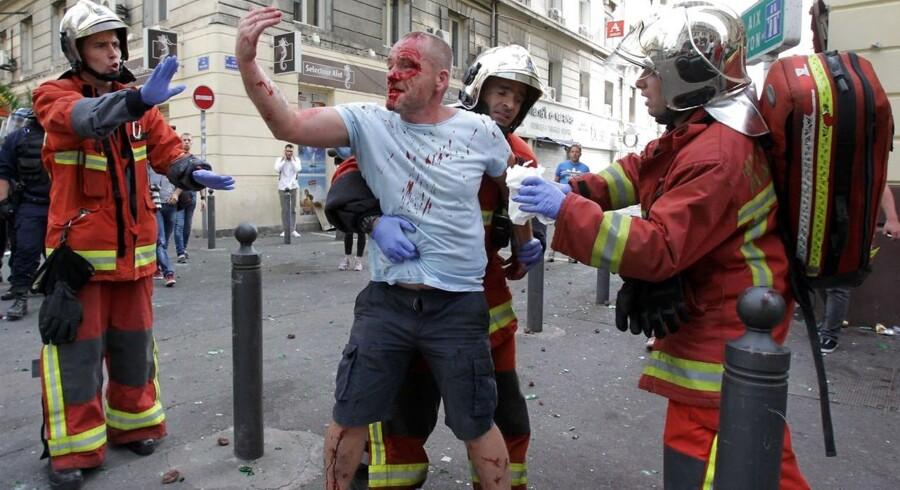 En engelsk supporter er kommet til skade efter kampene med russiske fans.