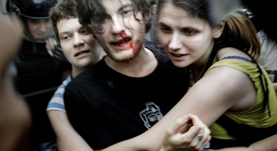 Homofobi i Rusland. Kiriee Fedorov bløder efter slag i ansigtet.
