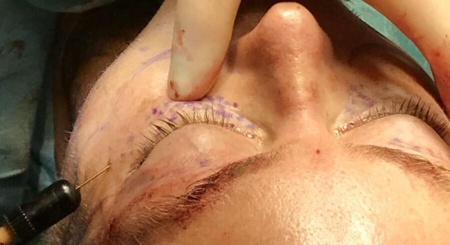 Fedttransplantation er det område af skønhedskirurgien, som er i størst vækst. Indsprøjtning af eget fedt i øjenomgivelserne supplerer den skærende plastikkirurgi.