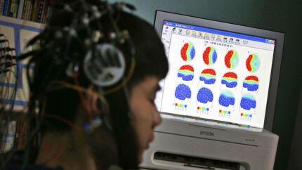 En internetafhængig dreng får scannet sin hjerne på et behandlingscenter for internetafhængighed i Beijing.